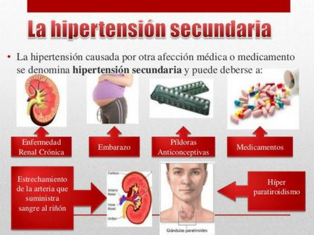 Comentario en ¿Que Es La Tensión Arterial?, Como Se..